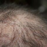 Príčiny vypadávania vlasov, pomôcť vám môžu aj domáce recepty