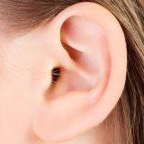 Pískanie v uchu – tinnitus