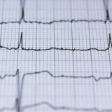 EKG skontroluje vaše srdce a nielen to