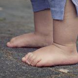 Ploché nohy – aká je príčina a riešenie tohto častého problému?