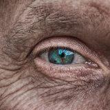 Zelený zákal – glaukóm