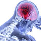 Zápal mozgových blán