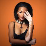 Strašiak vitiligo – čo robiť keď vaša koža stráca pigment?