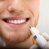 Zubný kameň dokáže potrápiť nielen vaše ďasná