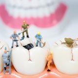 Zubný kaz môže bolieť, ale aj nemusí