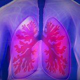 Hrozí vám rozdutie pľúc – emfyzém?