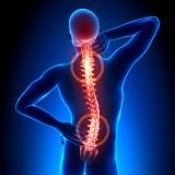 Ochorenia chrbtice